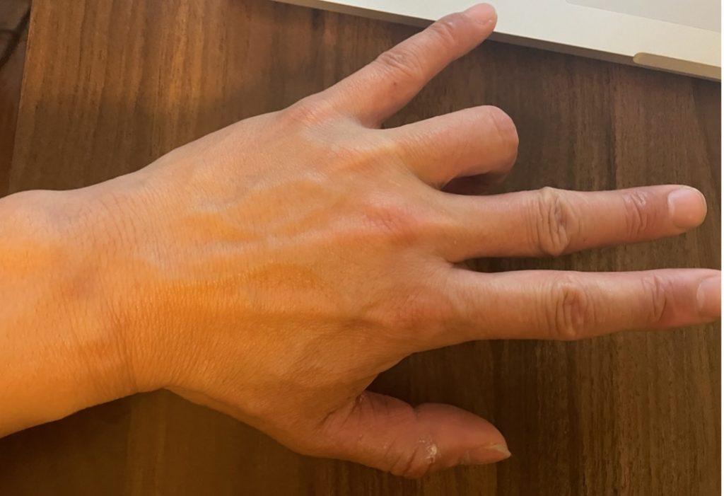 薬指を自由に!!薬指を伸ばす力の強化トレーニング